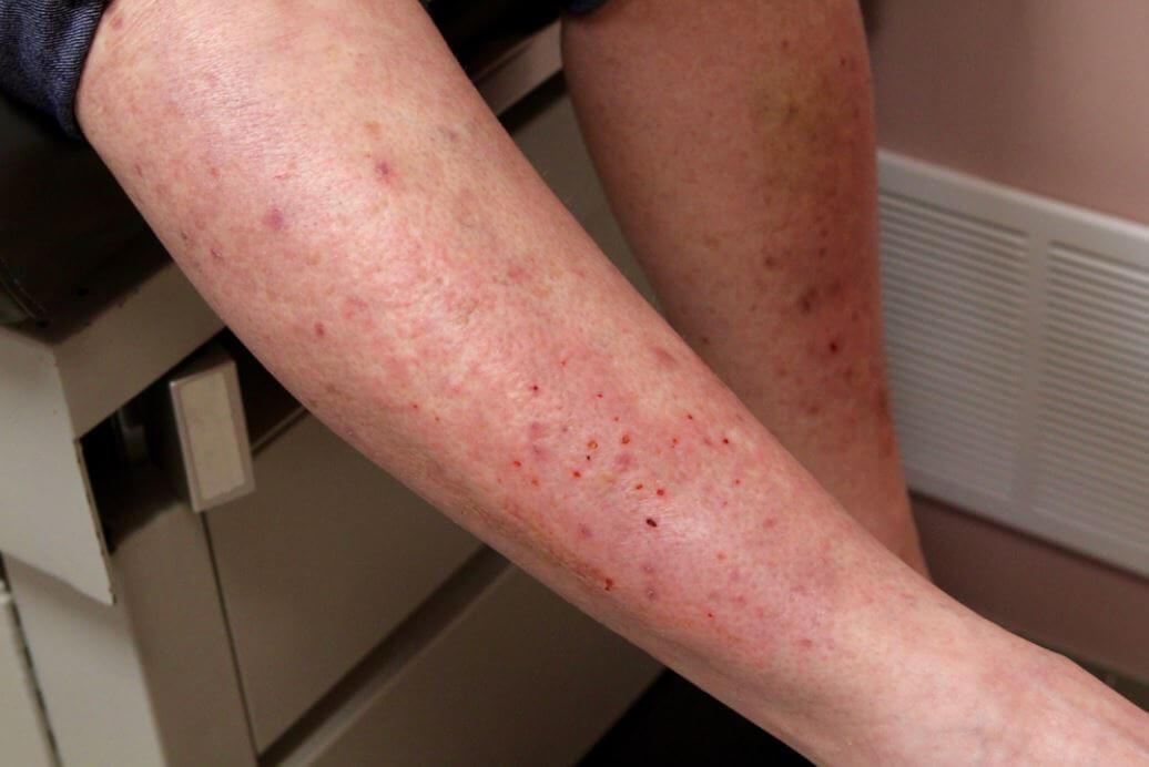 bites-itchiness-dermatitis-herpetiformis-skin-rash-woman-Nonceliac-Gluten-Sensitivity-owl-pest-control
