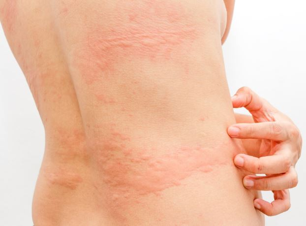 bites-itchiness-women-symptoms-itchy-urticaria-owl pest control Ireland