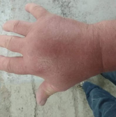 Wasp sting reaction allergy on hand - Owl pest control Dublin